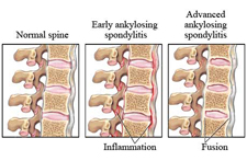 Treatment for Ankylosing Spondylitis