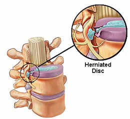 Physcial Therapy for Herniated-or-Prolapsed-Disc