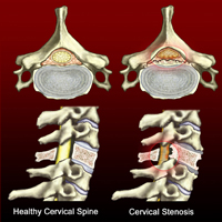 Limerick City treatment centre for Spinal Stenosis