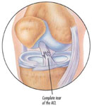 Physical Therapy for Torn Anterior Cruciate Ligament (ACL Tear)