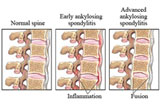 Physcial Therapy for Ankylosing Spondylitis