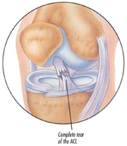 Physcial Therapy for Torn Anterior Cruciate Ligament (ACL Tear)